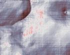 ernährung bei arthrose knie kreuzband
