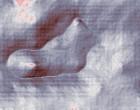 heberden arthrose deutsches arthrose forum