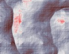 hüftgelenk arthrose hüftgelenk