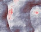 knie arthrose osteopathie arthrose
