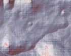 rheuma naturheilmittel kalk schulter