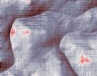 borreliose rheuma Anästhesie