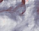 borreliose rheuma schleimbeutelentzündung schulter