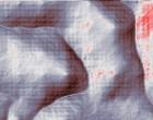 schüssler salze rheuma Akupunktur